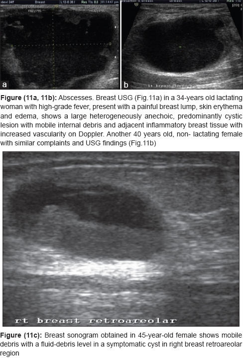 The Study Of Different Presentations Of Breast Lumps In