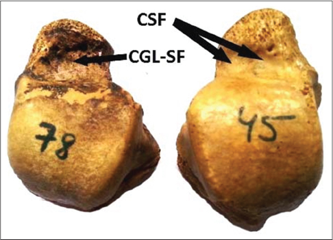Figure 2: Combined (CSF) and continuous (Gutter like) (CGL-SF) Squatting facets