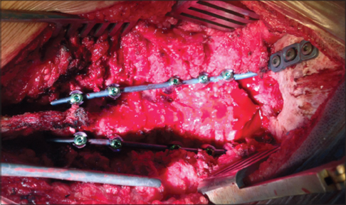 Figure 3: Intraoperative Occipito-thoracic fixation and fusion using rods and screws