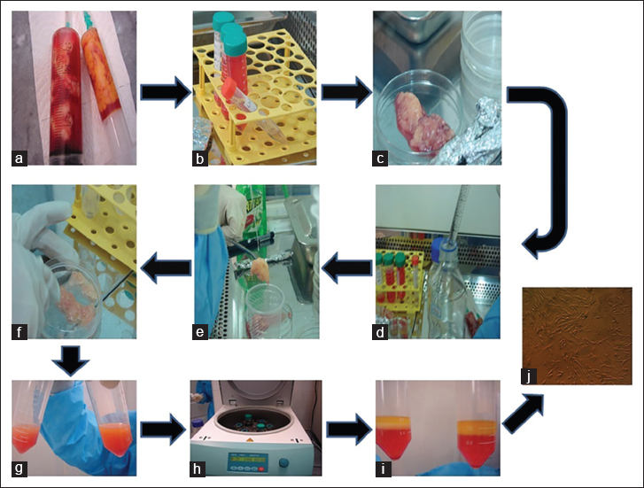 Figure 2: different steps of adipose-derived stem cells isolation (a-j). This schematic describes the isolation process of adipose-derived stem cells from harvested whole human adipose tissue