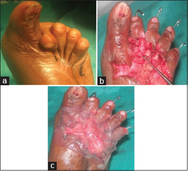 Figure 4: Severe contracture deformity (a); Post contracture release 2<sup>nd</sup> to 4<sup>th</sup> metatarsal bones sans covering (b); Healicoll applied (c)