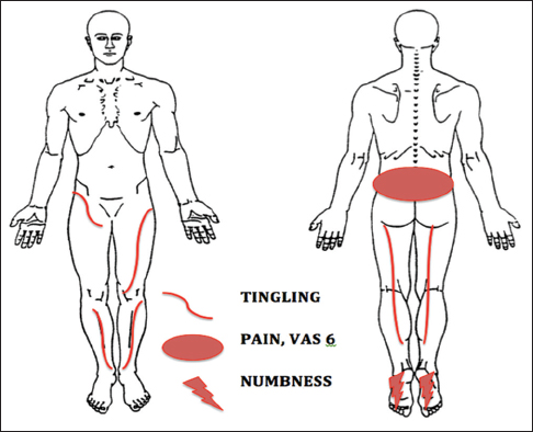 Nonspecific Low Back Pain (LBP) can occult a serious