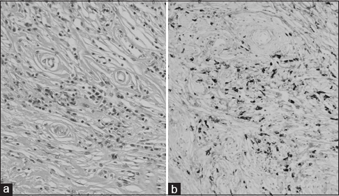 Figure 2: Pathological specimen obtained from video-assisted thoracic surgery showed storiform pattern of fibrosis (a) and immunohistochemical staining for IgG4 positive cells (b)